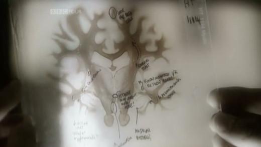 The Brain — A Secret History